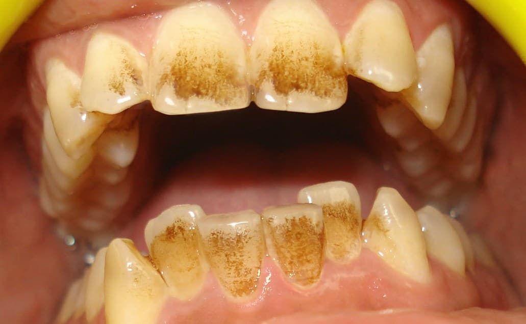 Как удалить коричневый налет на зубах — Зубы