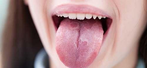 Географический язык: причины возникновения, лечение десквамативного глоссита