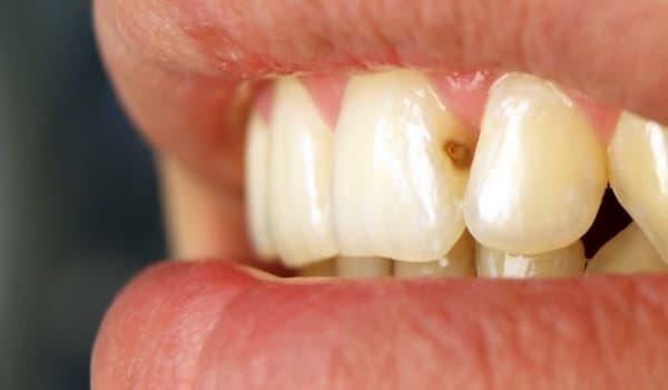 Кариес между передними зубами: причины и особенности » Быть может лучший сайт о лечении зубов