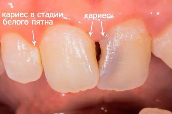 karies perednyh zubov
