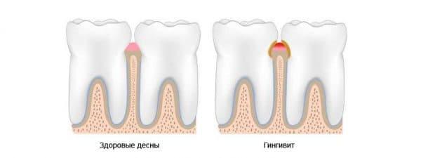 simptomy gingivita