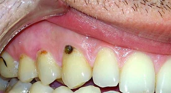 Как лечат кариес корневой на зубе