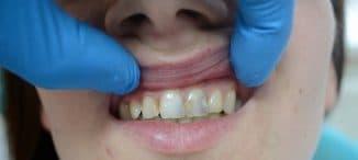 karies na perednih zubah