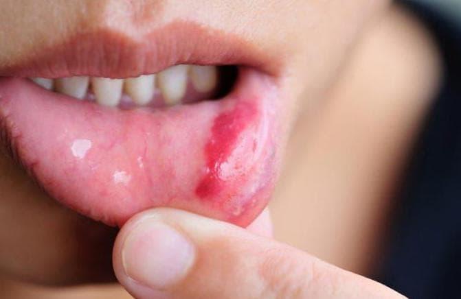 Вирусный стоматит особенности развития и методы лечения