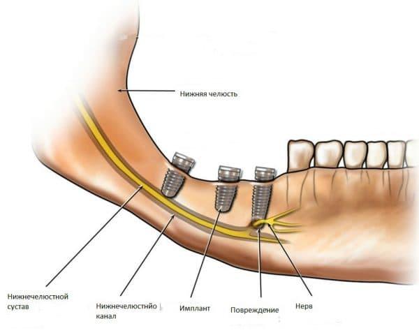 онемение зуба при имплантации