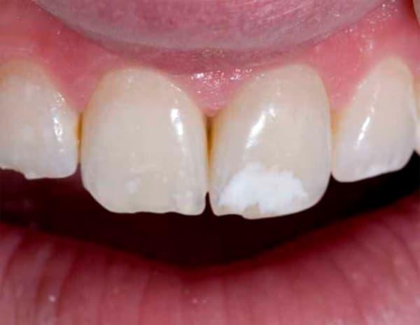 Почему на зубах появляются белые пятна