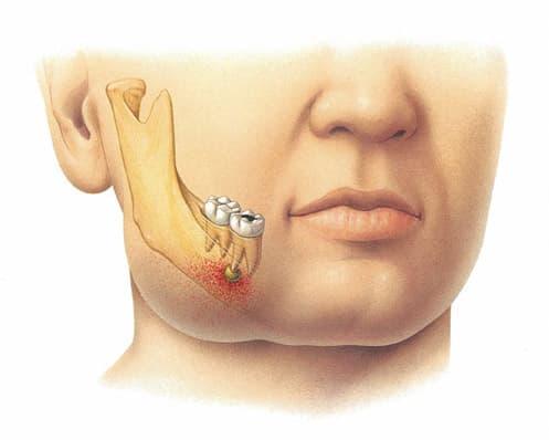 Воспаление надкостницы зуба периостит симптомы и лечение