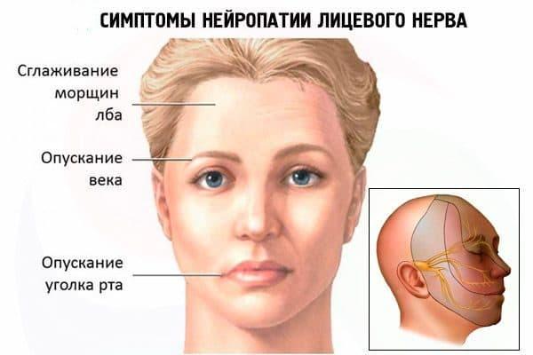 neyropatiya licevogo nerva