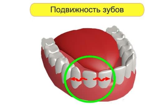 podvizhnost zubov