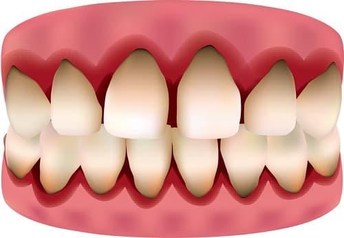 Воспалилась десна около зуба что делать и как лечить