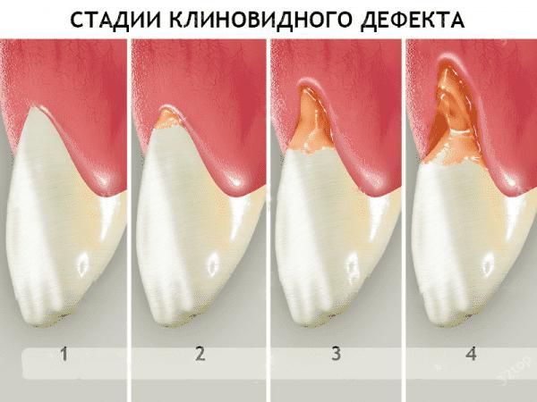 stadii klinovidnogo defekta