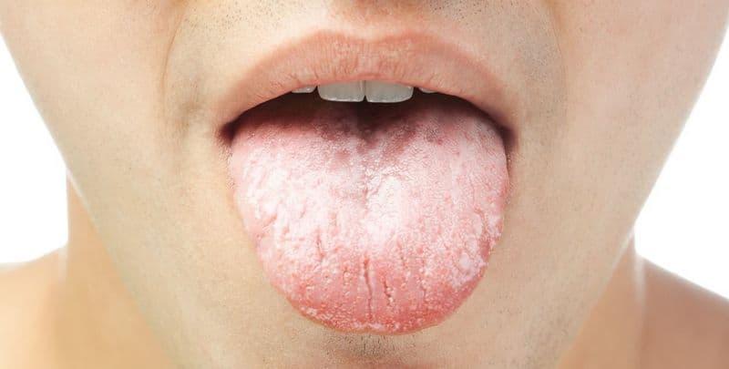Кандидозный глоссит языка лечение