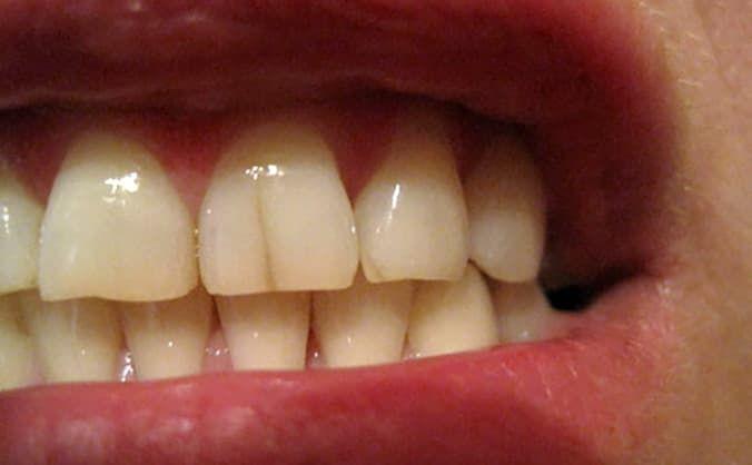 Трещина на переднем зубе что делать