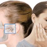 Заклинило челюсть: признаки и методы лечения вывиха челюстного сустава