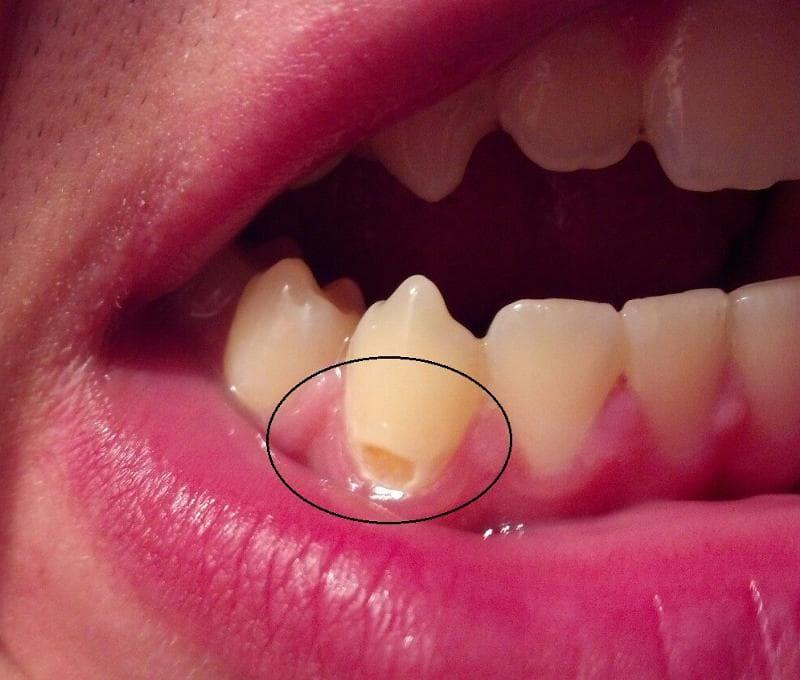 Кариес на передних зубах — виды, стадии, методы лечения