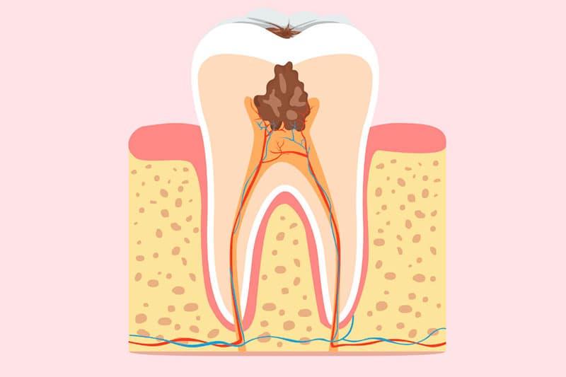 Чувствительность зубов после лечения кариеса — Зубы
