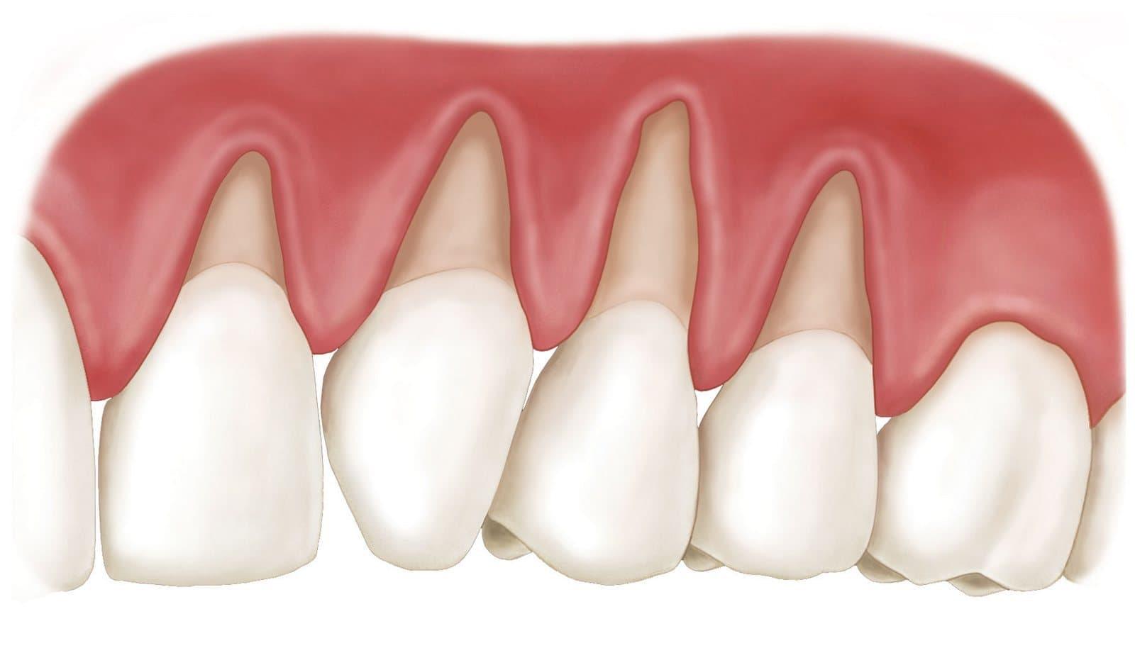 Лечение шейки зуба