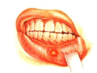 Энтеровирусный везикулярный стоматит — Симптомы, Лечение