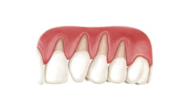 Видны корни зубов из десен