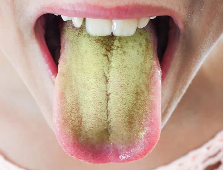 Печень не болит а язык желтый