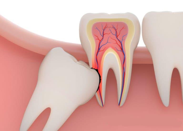 Зуб мудрости лежит горизонтально удаление